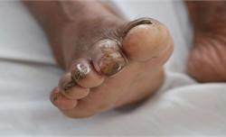 Thêm một người bệnh nhiễm whitmore từ vết lở loét ở ngón chân