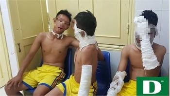 Chùm bóng bay phát nổ, 3 cầu thủ U14 Sông Lam Nghệ An nhập viện
