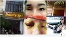Bắc Giang: Tiêm filler nâng mũi làm mù mắt khách nữ, cơ quan công an đã vào cuộc