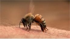 Bị cả bầy ong tấn công trên đường đi học về, cháu bé 3 tuổi nguy kịch