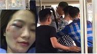 """Vụ hành hung nữ phụ xe buýt tại Hà Nội: Khởi tố vụ án """"Gây rối trật tự công cộng"""" và """"Cố ý gây thương tích"""""""