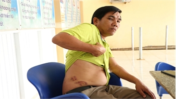 Đắk Nông: Điều tra, làm rõ việc Chánh Văn phòng Huyện ủy Tuy Đức hành hung nhân viên lái xe