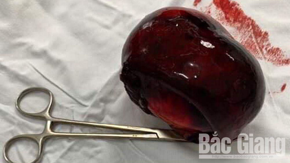 khối u, hiếm gặp, cao tuổi, buồng trứng
