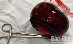 Cắt bỏ khối u buồng trứng đã hoại tử cứu sống cụ bà 91 tuổi