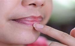 4 dấu hiệu trên khuôn mặt cảnh báo gan đang kêu cứu