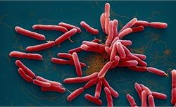Mẫu đất gia đình có 3 con tử vong nhiễm khuẩn Whitmore