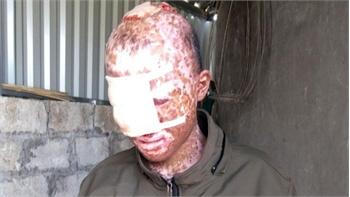 """Cậu bé mắc bệnh """"mặt quỷ"""" được giúp khoảng 160 triệu đồng"""