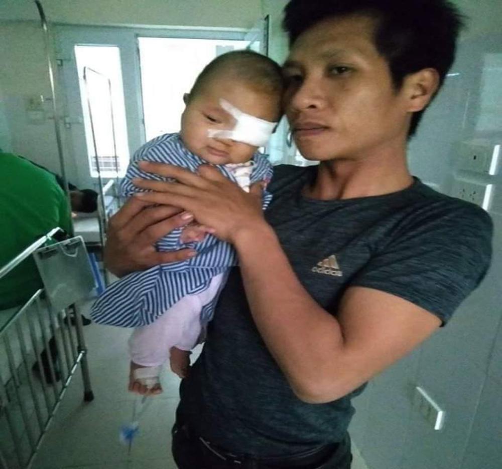 Cháu nguyễn Hải Đăng, bị u máu, Phúc Sơn, Tân Yên, cần được giúp đỡ