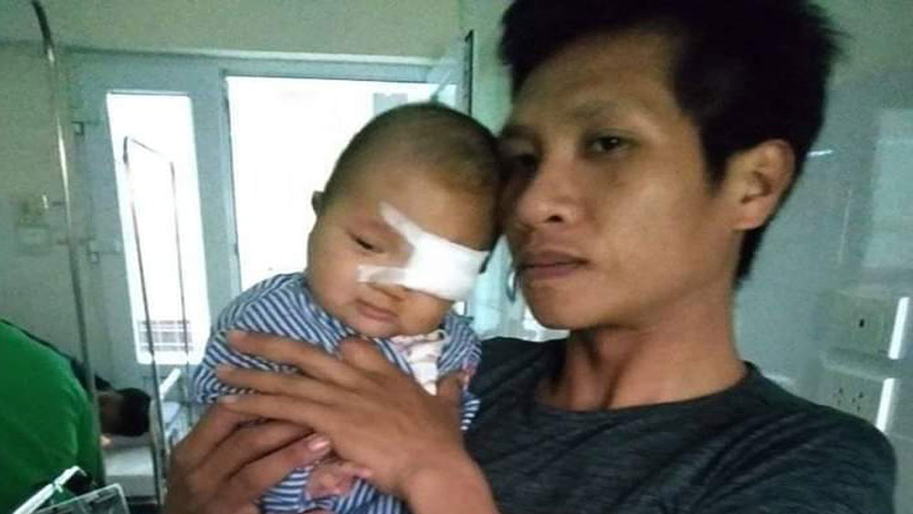 Bac Giang's boy with hemangioma needs help