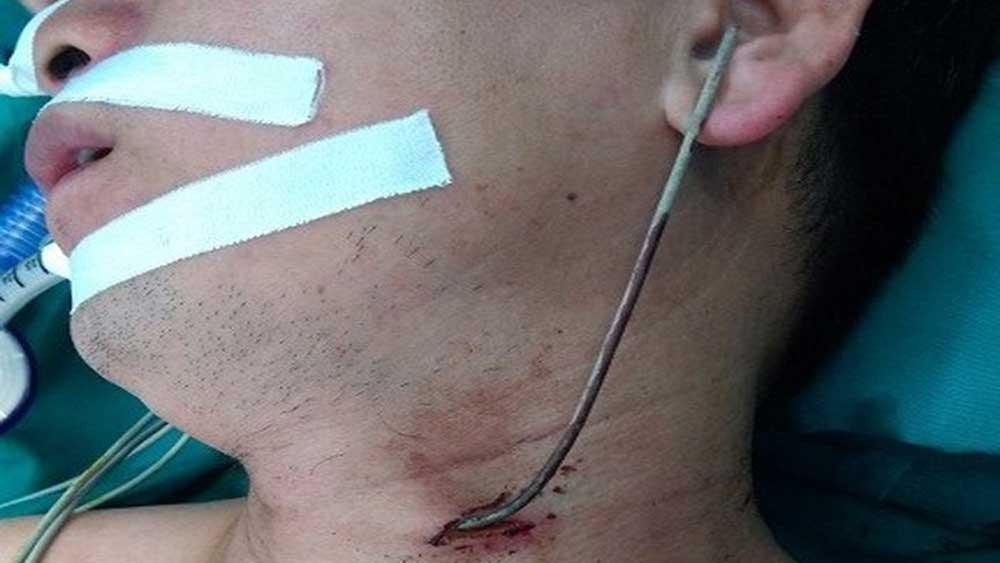 Cấp cứu một người ở xã Sơn Lôi, tỉnh Vĩnh Phúc bị thanh sắt găm giữa cổ