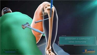 Phẫu thuật kéo dài xương để tăng chiều cao được tiến hành như thế nào?