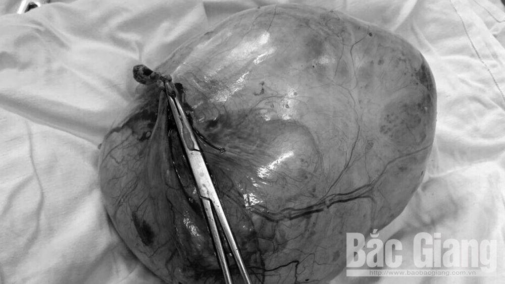 Cắt bỏ khối u 2,5kg ở tử cung bệnh nhân 89 tuổi