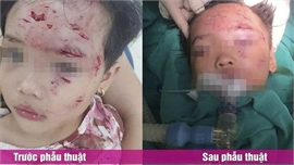 Phú Thọ: Phẫu thuật, điều trị cho bé gái 3 tuổi bị chó nhà hàng xóm cắn thương tâm