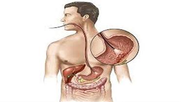 Thuốc lá làm suy giảm não bộ
