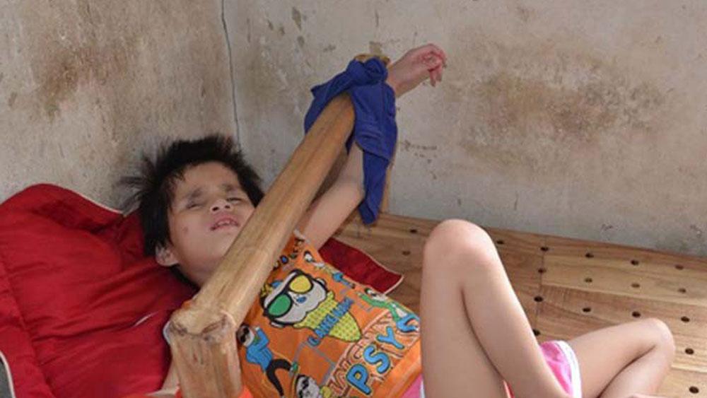 Hai bé song sinh tội nghiệp cần sự giúp đỡ