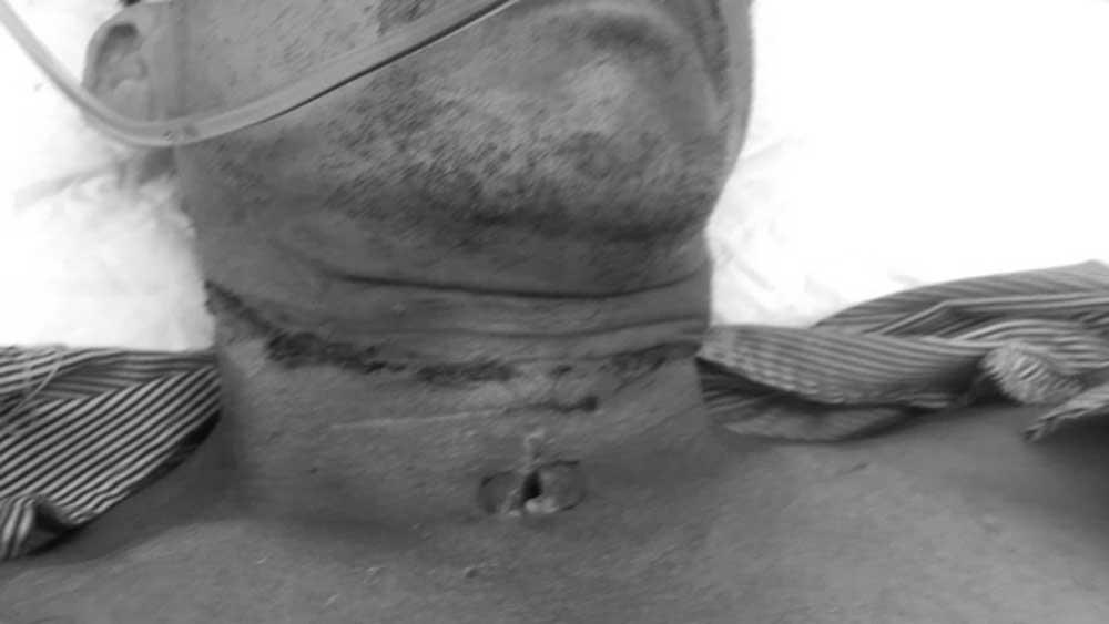Bắc Giang: Người đàn ông bị dây diều siết đứt cổ