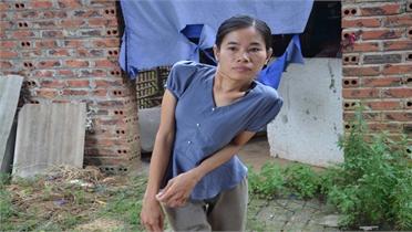 Cô gái lưng cong vẹo được hỗ trợ hơn 115 triệu đồng
