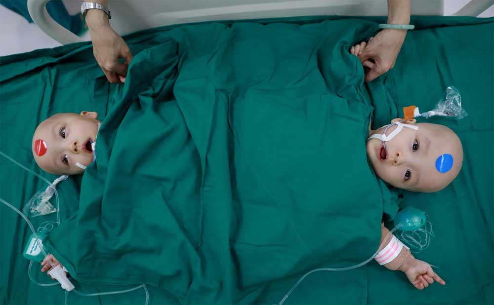 A closer look, successful severance, conjoined twins, Truc Nhi, Dieu Nhi, 13-hour separation,  medical experts