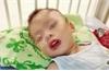 Uống nhầm thuốc tẩy bồn cầu, bé trai bị loét thực quản, dạ dày