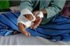 Khỉ nuôi xổng chuồng cắn hai người đàn ông nhập viện cấp cứu