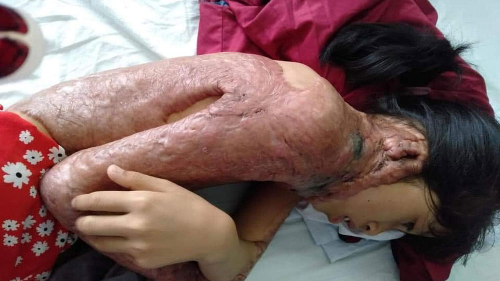 Burned girl with severe sepsis needs help