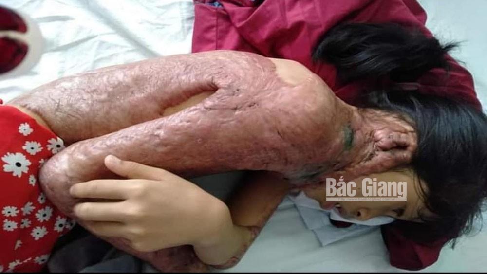 Cô bé bị bỏng nhiễm trùng nặng cần được giúp đỡ
