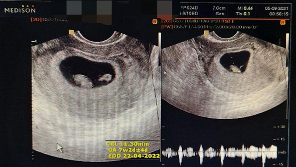 Một phụ nữ mang song thai hiếm gặp