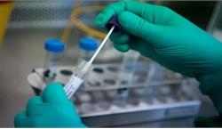 Xét nghiệm RT-PCR phải phù hợp tình hình dịch bệnh, tránh lãng phí