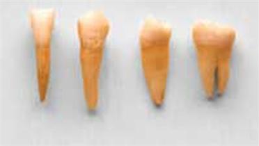 Tự nuốt 7 chiếc răng của mình