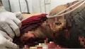 Bé trai 8 tuổi tử vong với nhiều vết thương bất thưởng